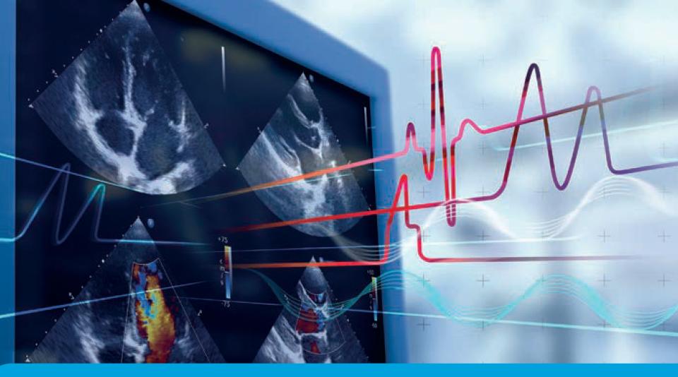 Trends in Medical Diagnostic Ultrasound Scanner Market 2022